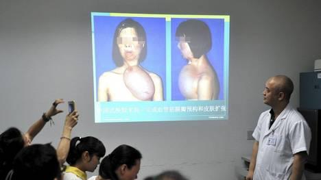 Fujian-China-trasplante-implantado-Reuters_CLAIMA20131024_0100_17